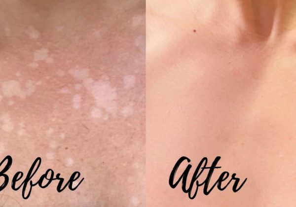 My At Home Tinea Versicolor Cure FAST Results